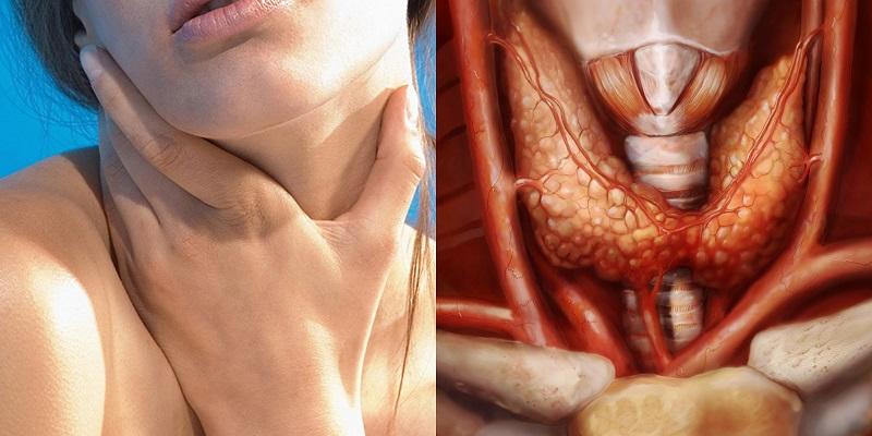 Щитовидка не халтурит и не шалит. Чудо-коктейль для тех, кто уже успел заметить проблему. Свари, наполни стаканчик и не болей