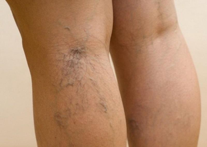 Не давай лимфе застаиваться! Если ноги отекают, важно не допустить губительной ошибки. Очистка лимфы происходит через слюну.