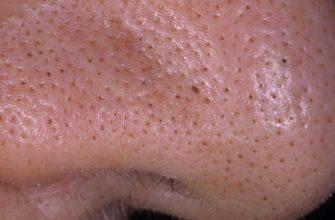 Больше никаких мучительных походов к косметологу! Хитрый трюк для избавления от черных точек.