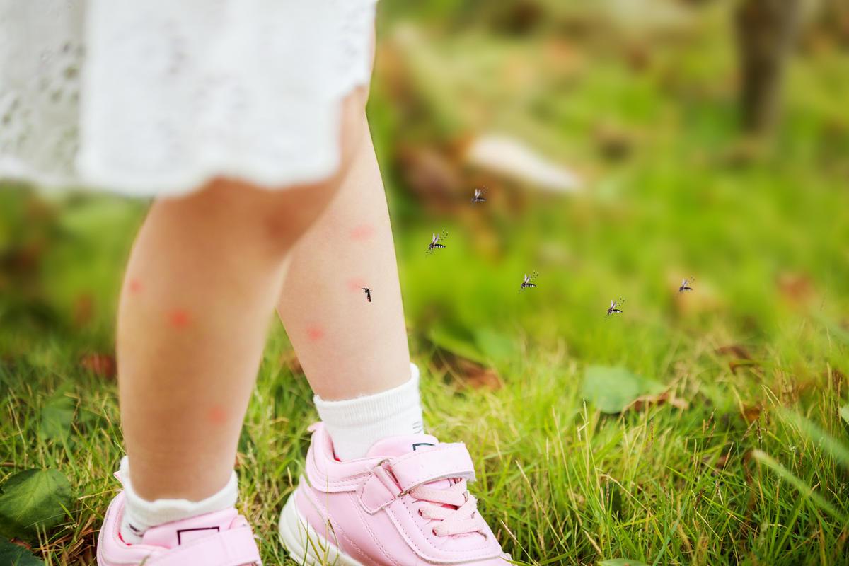 Как защитить ребенка от комаров: средства, которые подходят даже маленьким детям